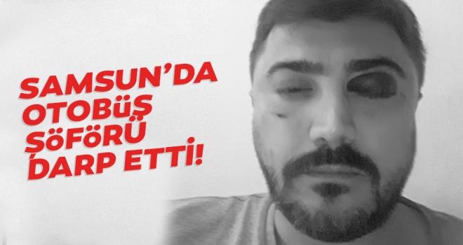 Samsun'da otobüs şöförü öldüresiye dövdü..!