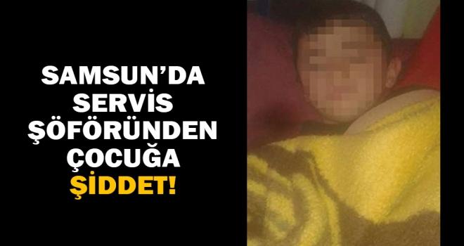 Samsun'da ilkokul 5. sınıf öğrencisine darp iddiası!